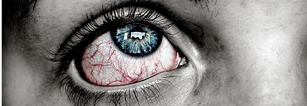 red-eye-no-sleep